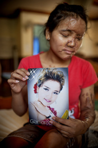 """A female victim of an acid attack. Her boyfriend doused acid on her out of jealousy. In her hand, it is a picture of her when she was a singer before the tragedy.   In the recent years, acid attacks become prominent issues in Cambodia. Whether it is a revenge for love or conflict of interest, more perpetrators seem to prefer acid as their choice of weapon. According to the report from Cambodian Acid Survivor Charity or CASC, the number of acid attacks in the first two months of 2010 is almost equal to the total of the previous year. Also, the trait of these incidents seems to change; more men fall as victims. In the path of becoming a key player in Southeast Asia Region, this kind of domestic issue is not at all heathy to Cambodia. A number of campaigns have been raised for tighter laws and harsher punishments for those who commit crimes related to acid. A stricter set of rules in distributing the """"liquid"""" is in the talk. Hopefully once it is in effect, there will be some changes. Only time will tell."""