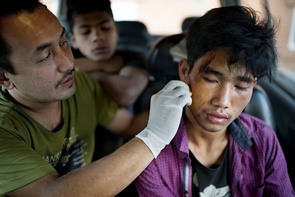 (EDITORS NOTE: Image contains graphic content.) Saroj Shrestra cleans a cut wound on a teenage boy's face after he got himself in a gang fight in the city. Many young teenagers in Kathmandu leave their homes to get away from their dysfunctional families. A lot of the kids end up taking drugs to numb the emotional pain, as well as find old food in the garbage to keep themselves alive. Saroj Shrestra used to be one of these kids. When he was 8 years old, he himself was left on the streets of Kathmandu, and at the age of 15, was taken in by an organisation called 'Child Watabaren'; who have helped him catch up with his education and trained him to become a paramedic. He now works with a mobile paramedic clinic team and plans to pursue a degree in Public Health.