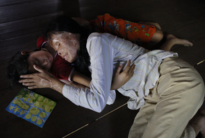 KAMPONG CHAM, CAMBODIA-JULY 30 : Cheav Chenda,36,  blind, shares a warm moment with her daughter Amra Bun,10,  at a relative's home after not seeing her for many months July 30, 2010 in Kampong Cham. Cheav Chenda was attacked with acid  in February 2008 while on a motorcycle, her daughter was in the front and her son recieved only a few scars. Her husband had left her moving to France with his French-Cambodian girlfriend, the girlfriend planned the attack ( from outside the country) in a jealous fit as Cheav's husband was visiting her. Acid is readily available, unregulated and inexpensive it is used as a weapon for settling jealous lovers quarrels, and domestic disputes, and business disputes. The acid is commonplace, sulfuric acid is used in car batteries, nitric acid in jewelry industry, and hydrochloric acid in rubber production. The number of acid attacks in the country has been growing in recent years and in the first few months of 2010, according to CASC who documented 10 attacks in the first 3 months of this year, 17 through June. A culture of impunity surrounds the crime where the majority of offenders escape trial and conviction. A large number of cases fail to be reported due to fear of retaliation or because of intimidation. Since the acid disfigures, tortures and often blinds an individual, victims often suffer from depression, loss of self esteems and suicidal tendencies. The government of Cambodia is currently taking steps to draft new legislation relating to acid violence.  Cambodian Acid Survivors Charity (CASC), an organization dedicated to the welfare of acid survivors in Cambodia, since 2006. (Photo by Paula Bronstein/ Getty Images)