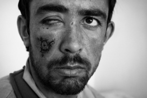 Afghan National Army soldier Nor Lai ,20, recovers from shrapnel wounds to his face at the ANA Military hospital October 23, 2009 Kabul, Afghanistan. An IED hit their vehicle while the soldiers were on patrol in Kajaki district of Helmand killing one and injuring seven.