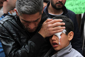 Turkish Riot police clashed with protesters during a May Day demonstration. A man helps a young boy after he was hit by a rubber bullet during the May Day clashes in Ankara.